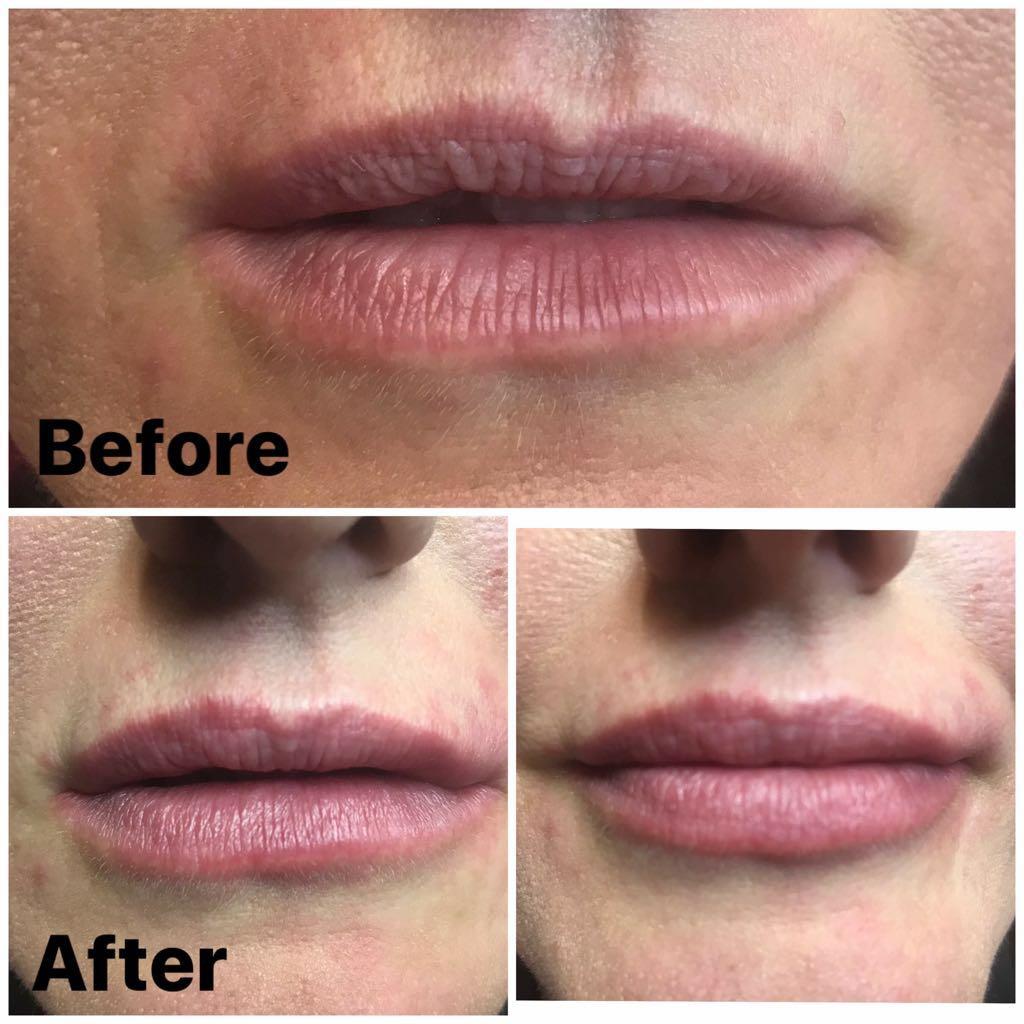 medycyna estetyczna w uk modelowanie ust